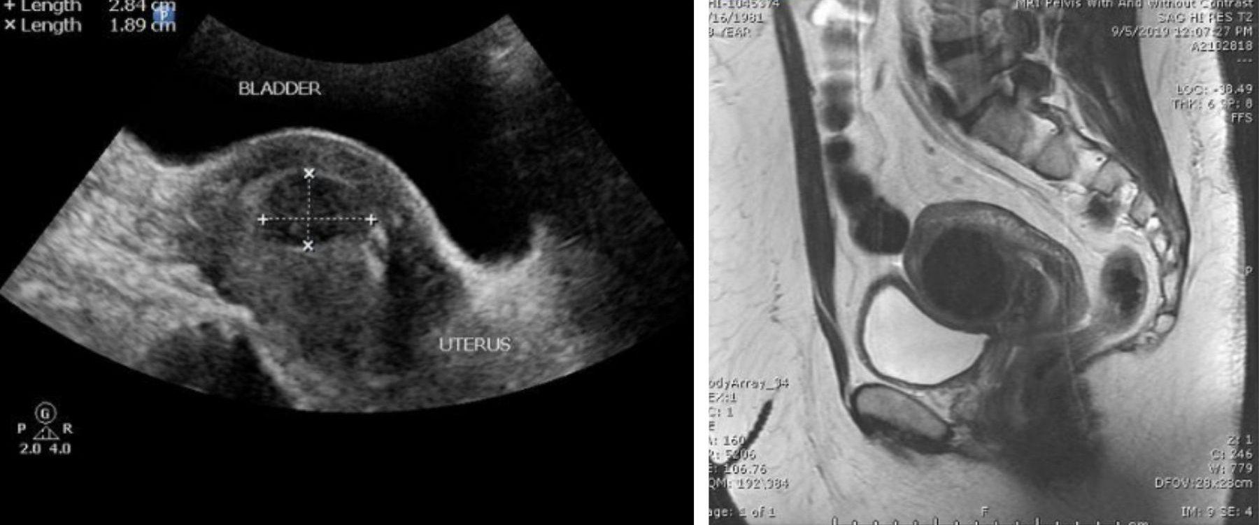 pelvic ultrasound vs pelvic MRI